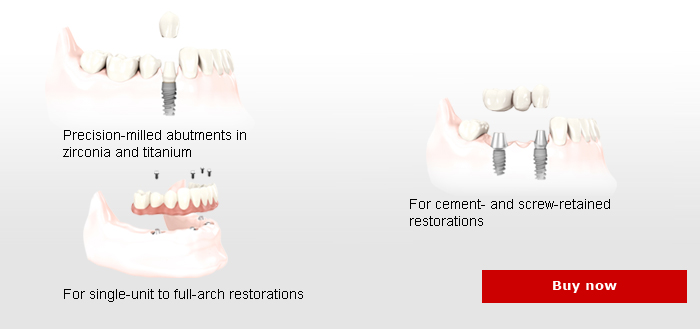 Prefabricated Abutments For All Indications